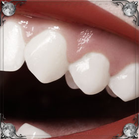 Испорченный зуб