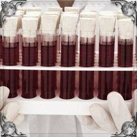 Кровь из грудной клетки