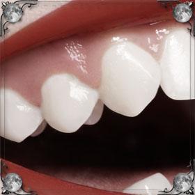 Поломался зуб
