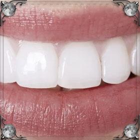 Раскрошился зуб
