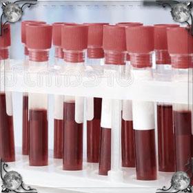 Смывать кровь