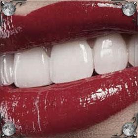 Вставлять зубы