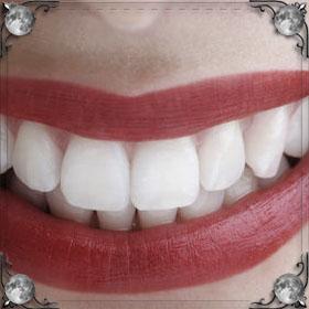 Зубы собаки